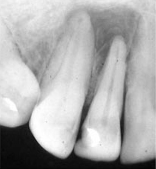 Root-Canal-Before