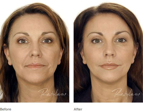 Derma-Fillers-Before-After-1