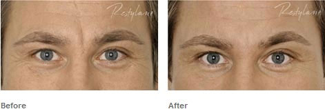Derma-Fillers-Before-After-2